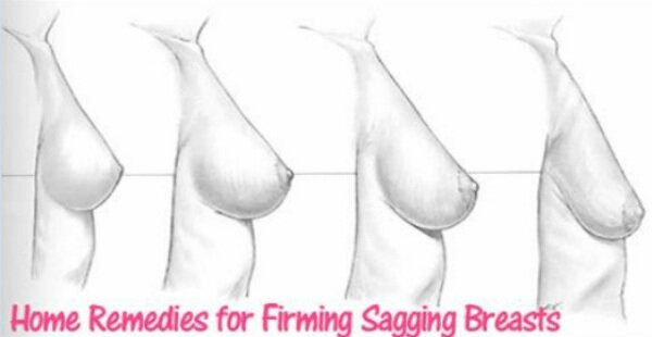 home-remedies-for-firming-sagging-breasts