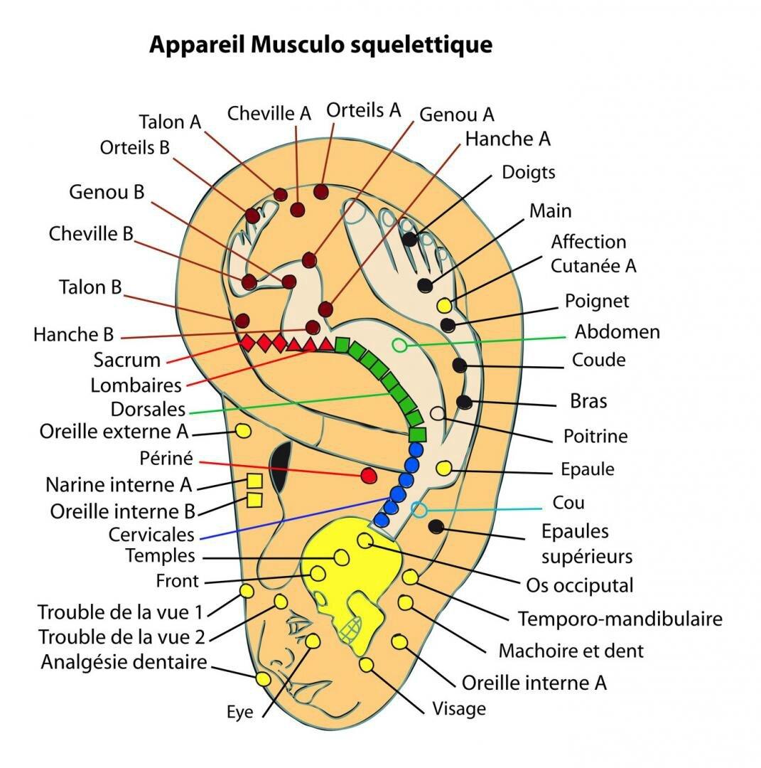 Auriculothérapie (psychologie )