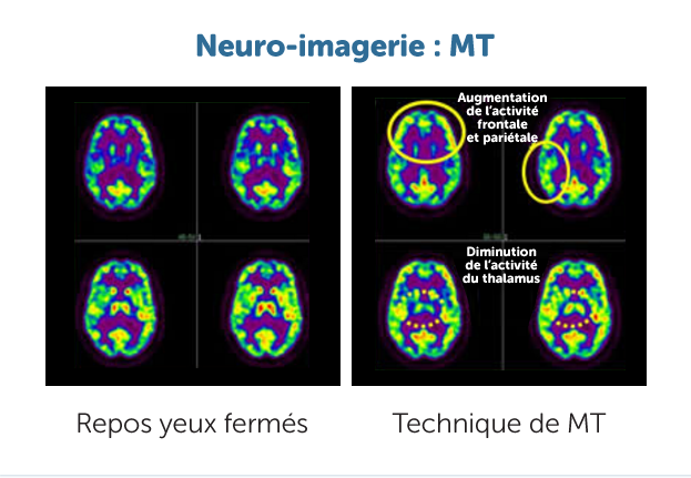 neural-imaging2