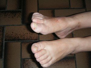 pieds_20moches_20