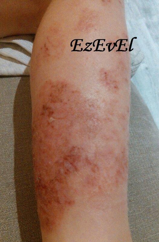 eczema 2 EzEvEl