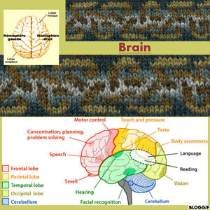 1_brain3