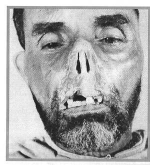 mutilation+algérie